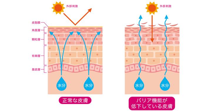 乾燥肌が慢性化する原因